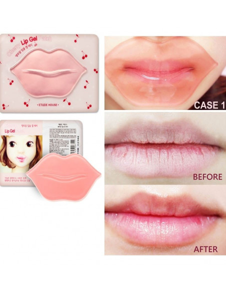 Etude House masque repulpant lèvres Cherry Lip Gel Patch